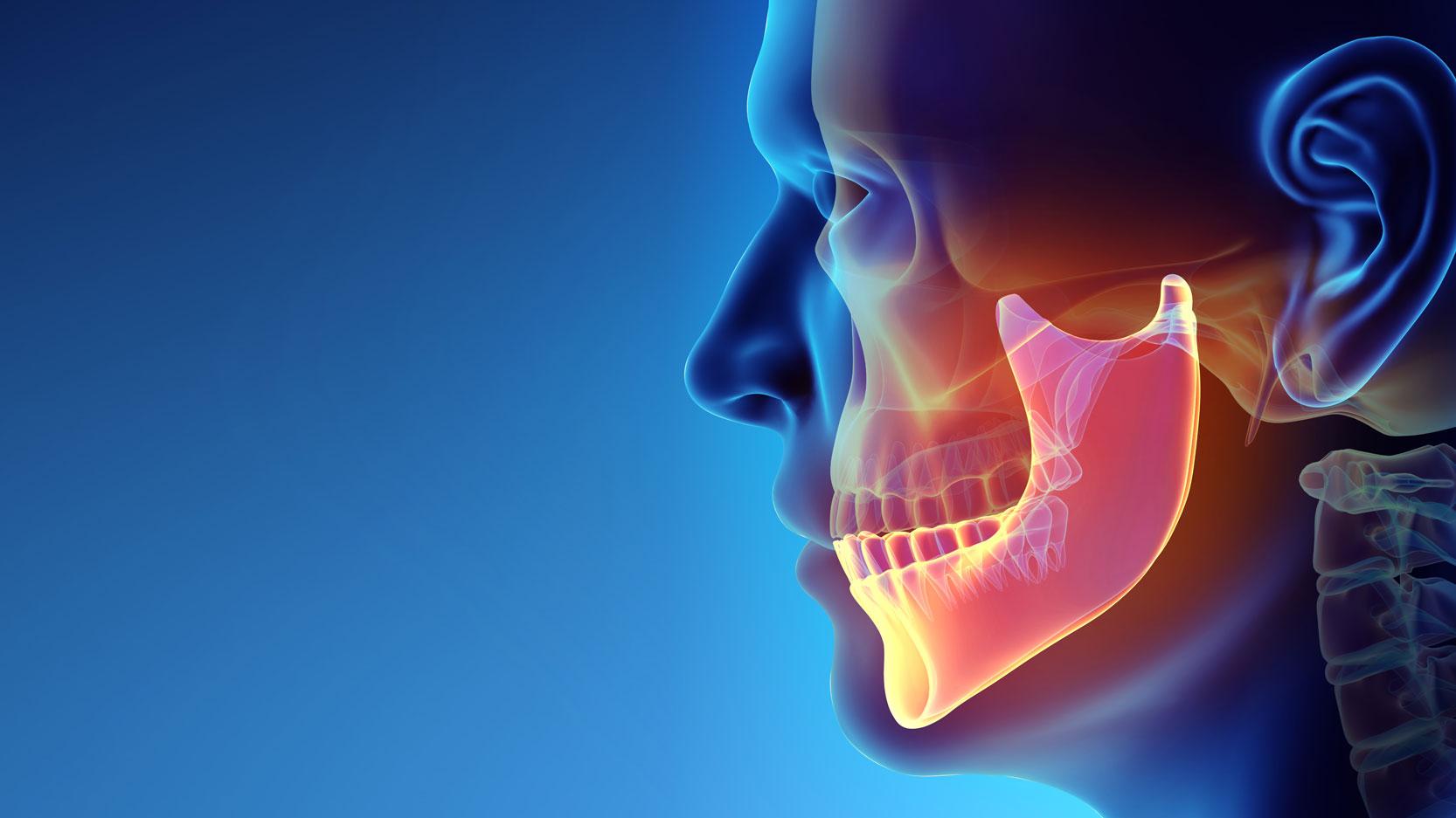 Facial Trauma Treatment Fort Wayne In Dr Lugakingira Jaw Wiring Surgery
